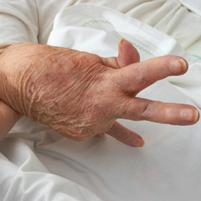 Curing Genetic Arthritis Risk Naturally