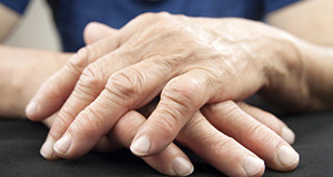 How Arthritis Turns Deadly (scary, but important to know)