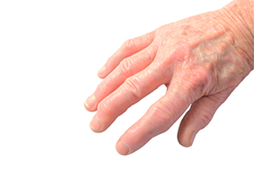 This Specific Type of Arthritis Causes Heart Attack and Death