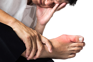 Gout and ED Connection (new study)