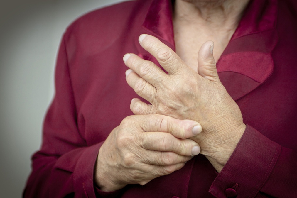 Arthritis and Fatigue Connection Revealed