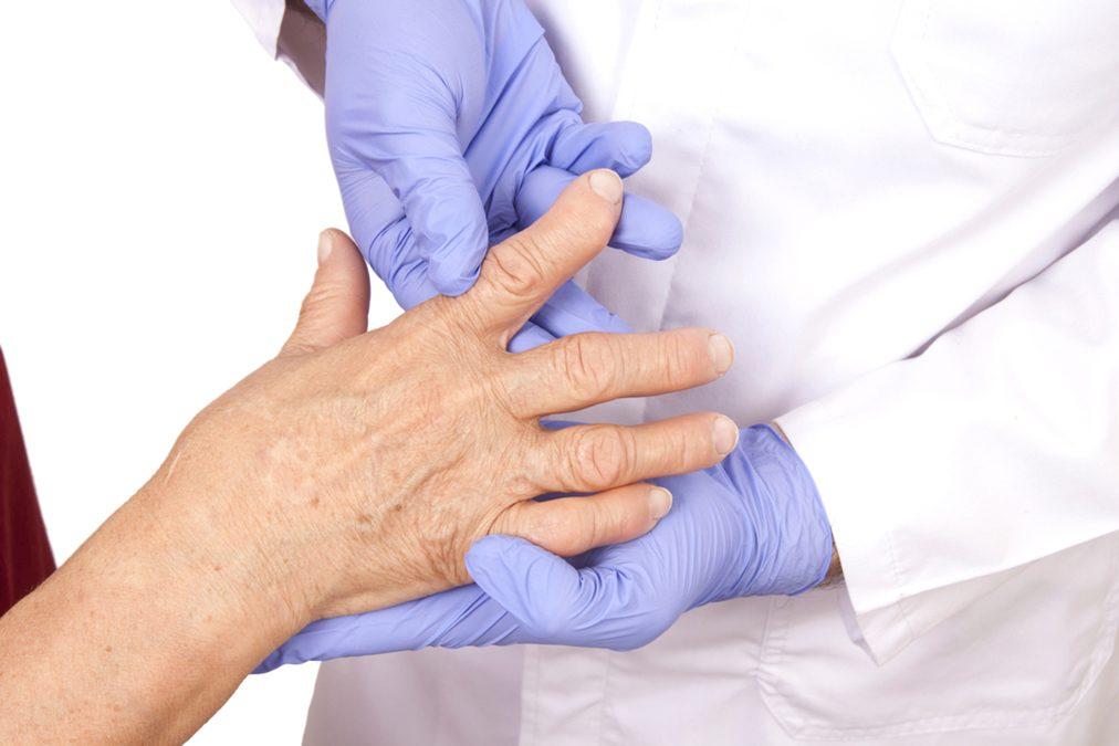 Easy (Free) Arthritis Home Test