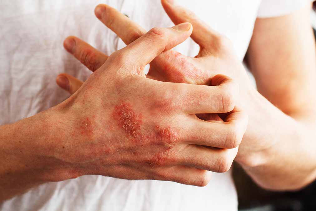 Deadly Psoriasis Consequences Reveled (study)