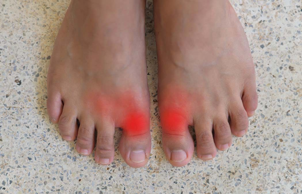 Gout and Gender Risk – Weird Connection