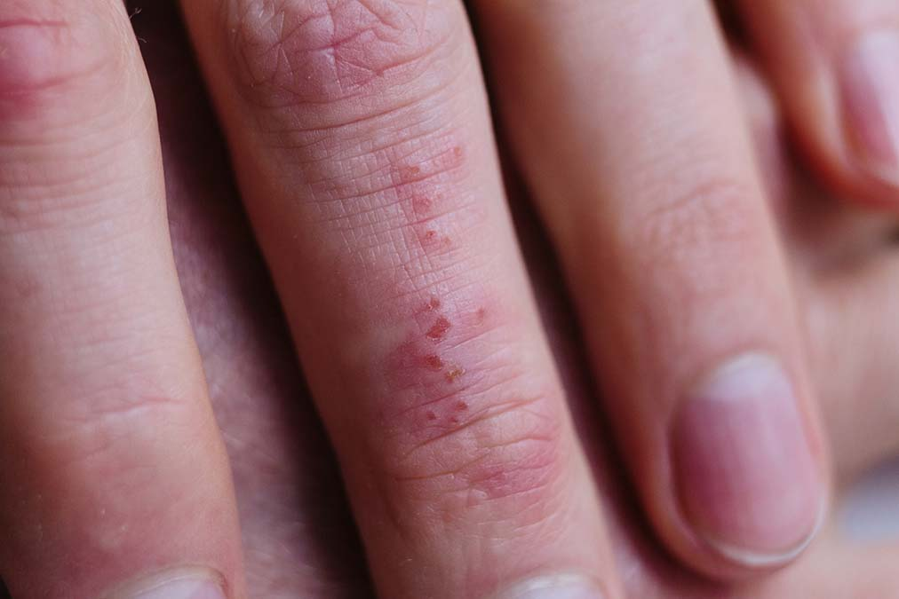Psoriasis's Deadly Consequences